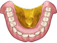 金属床義歯2